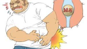 疝痛 〜尿管結石との戦い〜